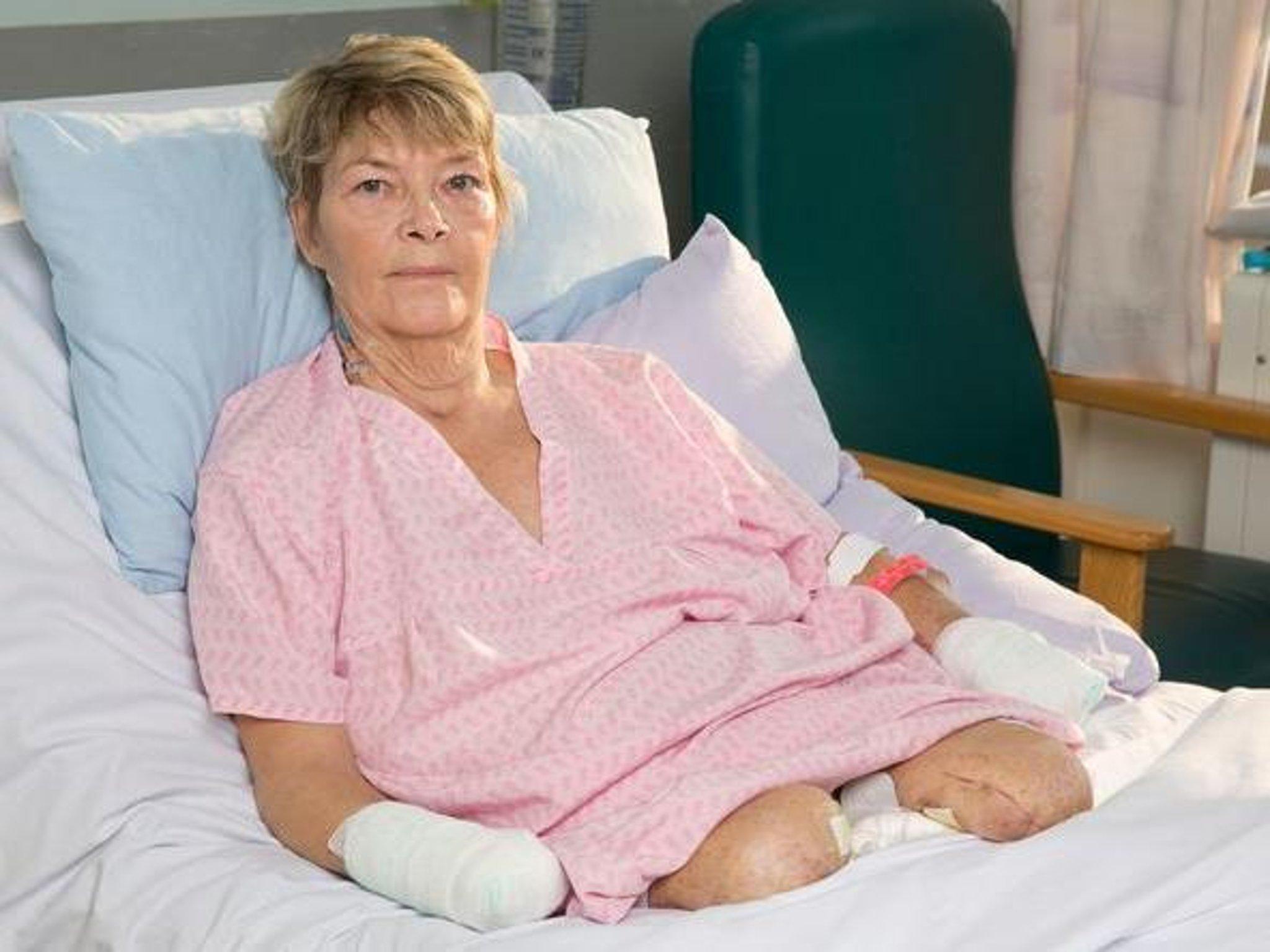 pierderea pacienților cu hemodializă pentru pierderea în greutate branduri de arzător de grăsime
