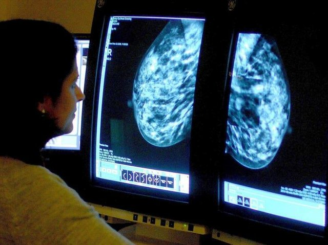 95% of suspected breast cancer patients at Milton Keynes Hospital were seen on time.
